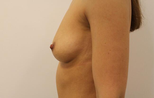 Nach der Brustvergrößerung, Patientin seitlich. Vorher-Nachher Bilder Brust OP