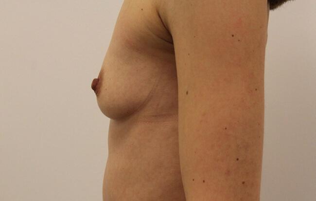 Vor der Brustvergrößerung, Patientin von der Seite. Vorher-Nachher Bilder Brust OP