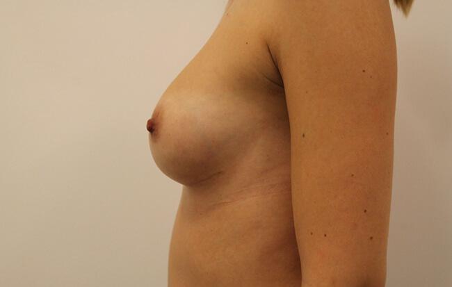 Nach der Brustvergrößerung, Patientin von der Seite. Vorher-Nachher Bilder Brust OP