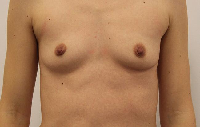 Vor der Brustvergrößerung, Patientin von vorne. Vorher-Nachher Bilder Brust OP