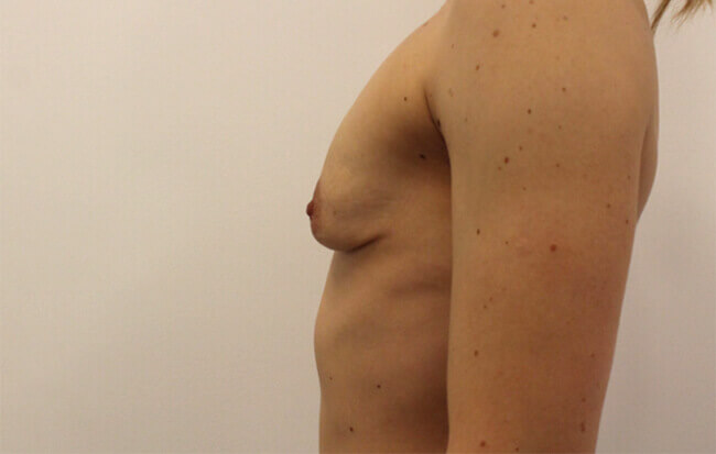 Vor der Brustvergrößerung, Patientin seitlich.