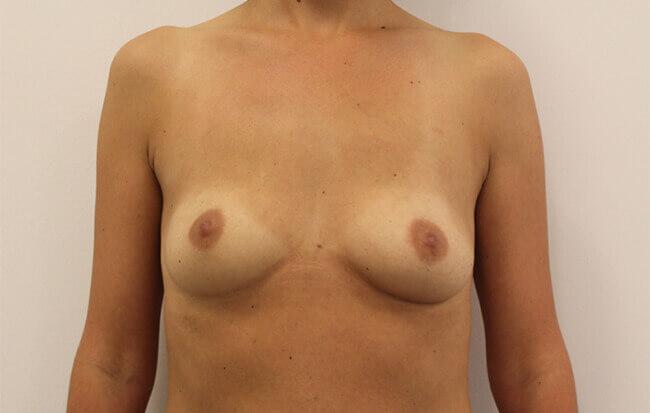 Vor der Brustvergrößerung, Patientin von vorne. Bild vor der Brust OP in Linz