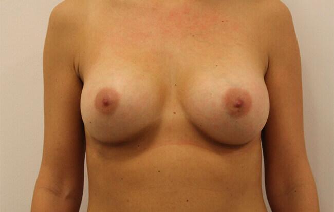 Nach der Brustvergrößerung, Patientin von vorne. Bild nach Brust OP in Linz