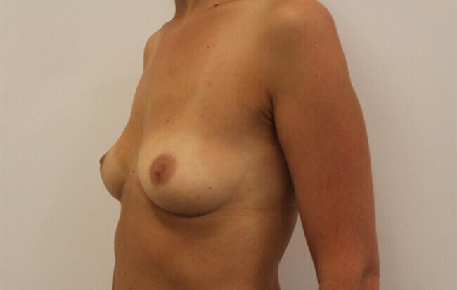 Vor der Brustvergrößerung, Patientin schräg. Bild vor der Brust OP in Linz