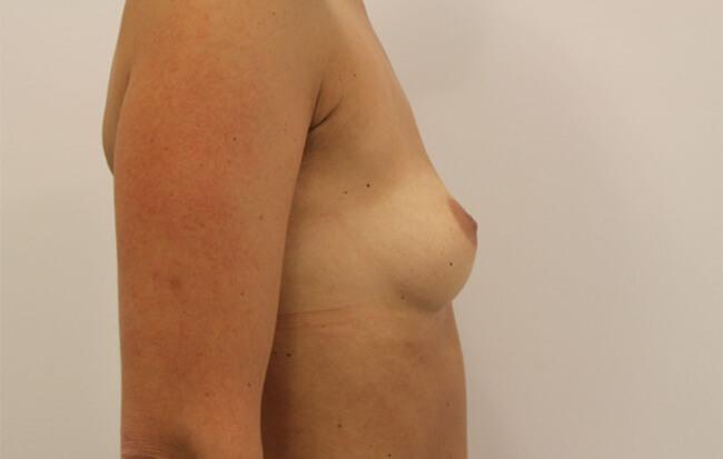 Vor der Brustvergrößerung, Patientin seitlich. Bild vor der Brust OP in Linz