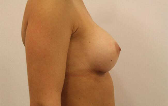 Nach der Brustvergrößerung, Patientin seitlich. Bild nach Brust OP in Linz