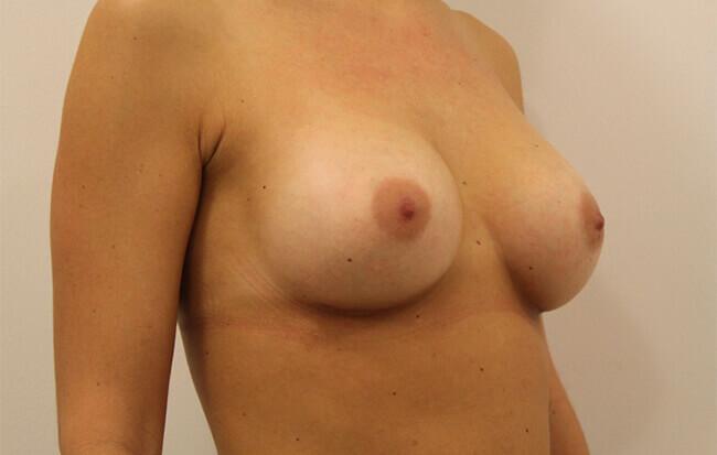 Nach der Brustvergrößerung, Patientin schräg. Bild nach Brust OP in Linz