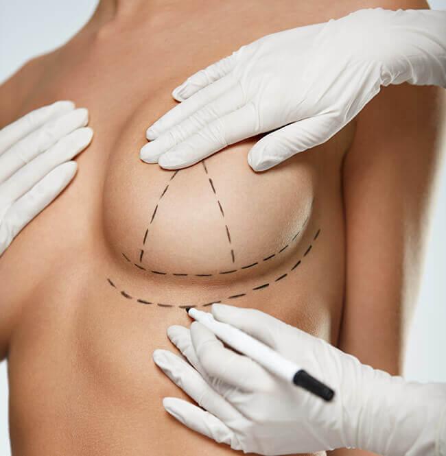 Die Brustvergrößerung – die am häufigsten durchgeführte Schönheits OP