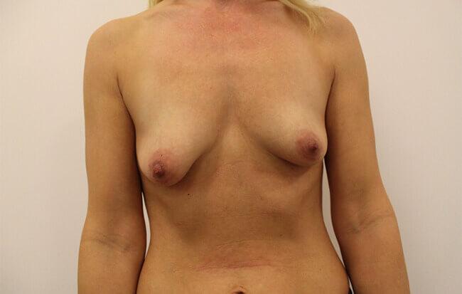 Vor der Brustvergrößerung, Patientin von vorne.