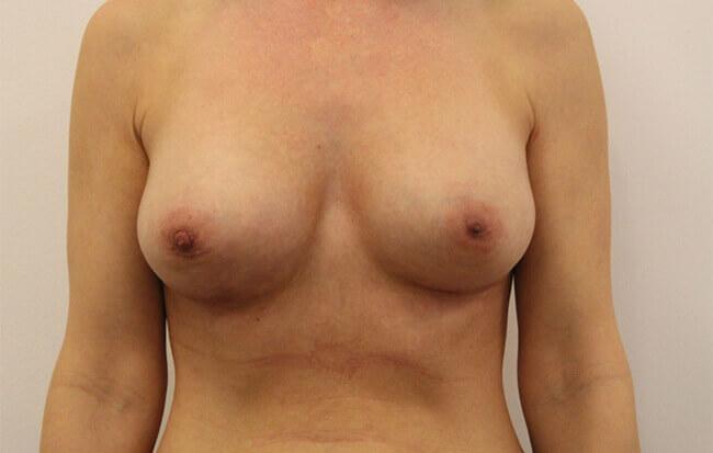 Nach der Brustvergrößerung, Patientin von vorne.