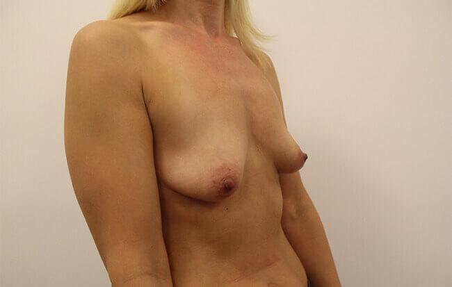 Vor der Brustvergrößerung, Patientin schräg.