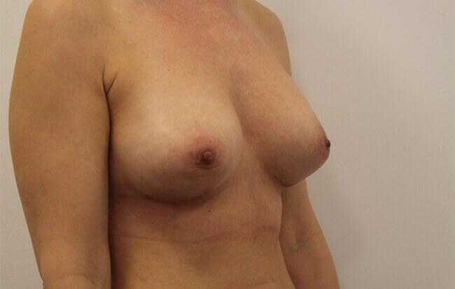 Nach der Brustvergrößerung, Patientin schräg.