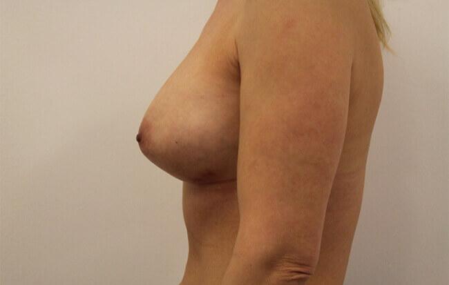 Nach der Brustvergrößerung, Patientin seitlich.
