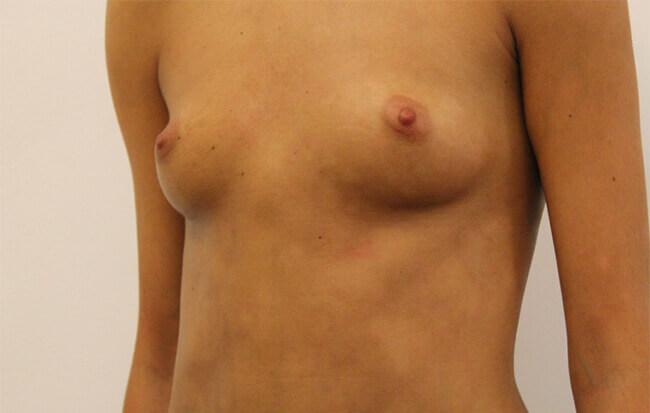 Vor der Brustvergrößerung, Patientin schräg. Bild vor Brust OP in Linz