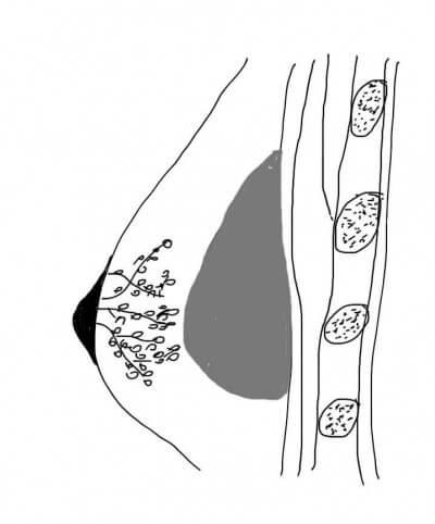 Brustvergrößerung über dem Brustmuskel. Das Brust Implantat liegt unter der Brustdrüse.